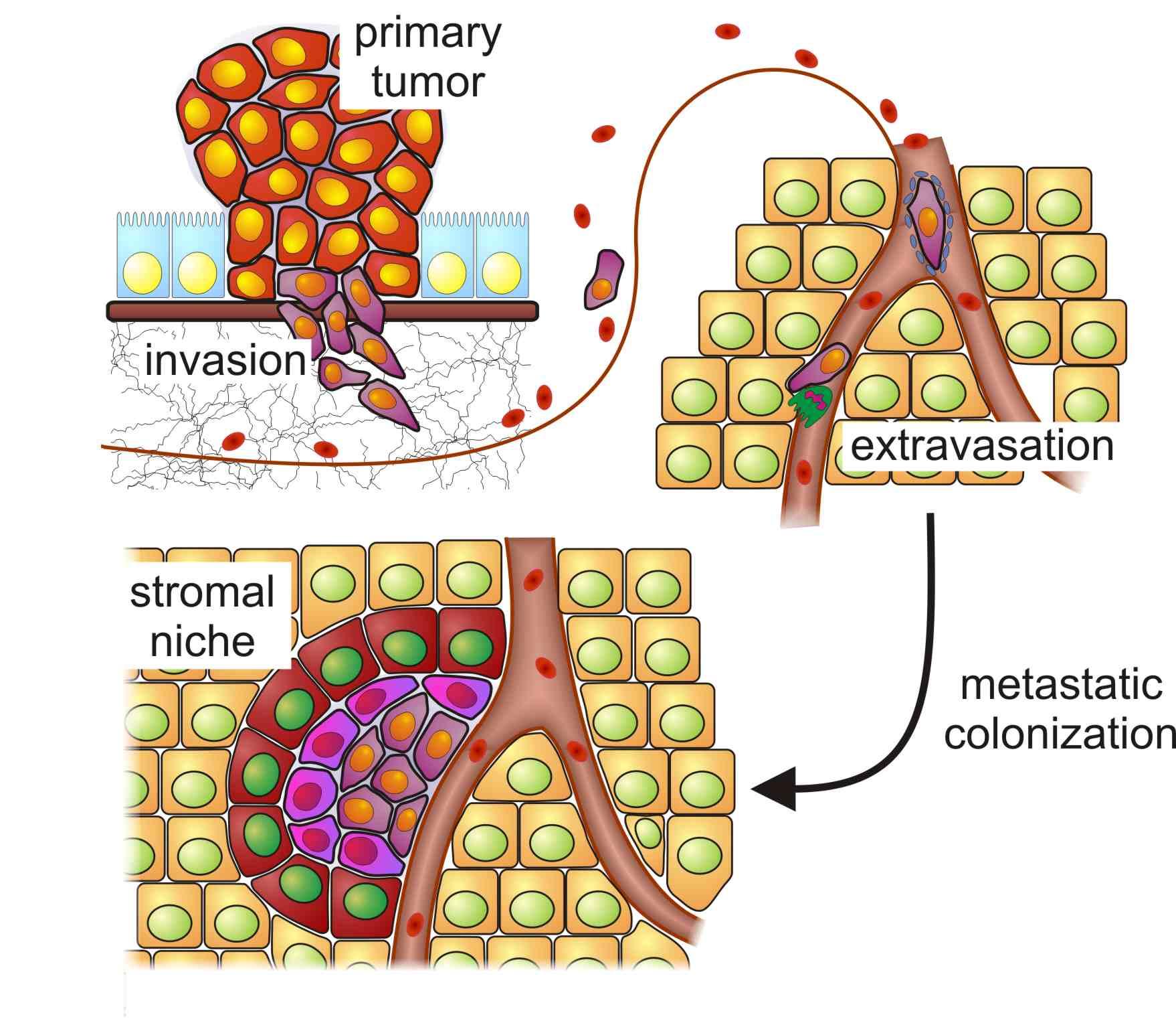 cancer que es la metastasis)