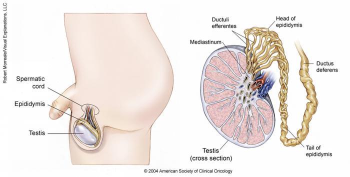 testicular cancer or epididymis)