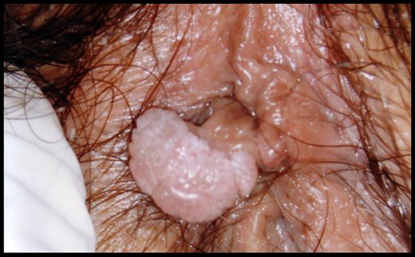 hpv sintomi bruciore