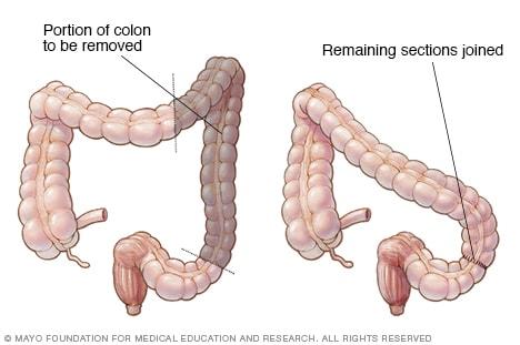chirurgia pentru varicoză sau nu