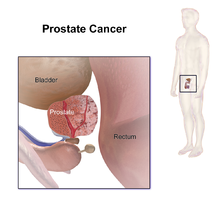 aggressive cancer in prostate schistosomiasis control