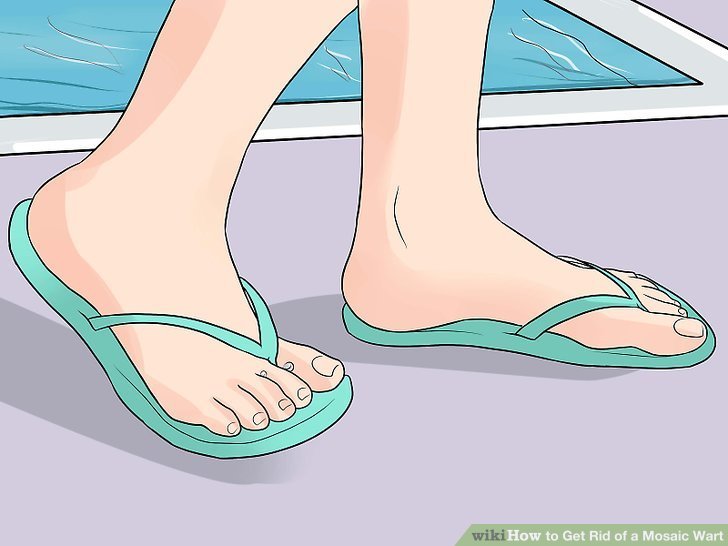 foot warts mosaic hpv oropharyngeal cancer transmission