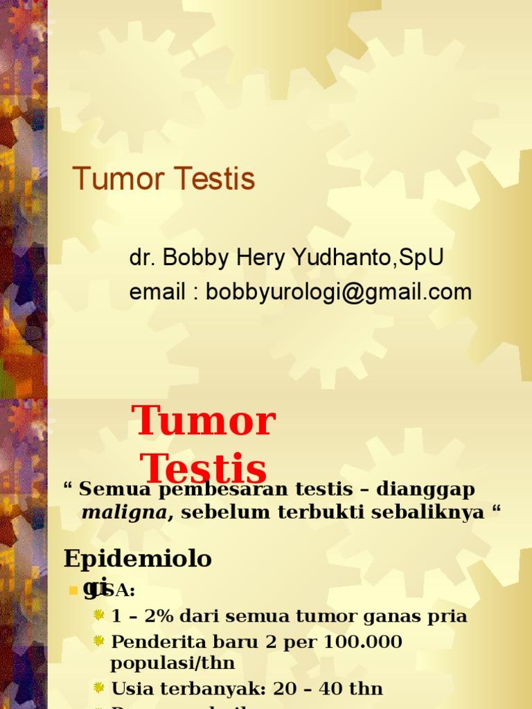 Cancerul testicular şi răspândirea lui în rândul bărbaţilor tineri. Cum poate fi descoperit la timp