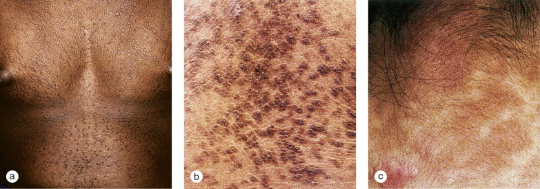 reticulated papillomatosis differential diagnosis)