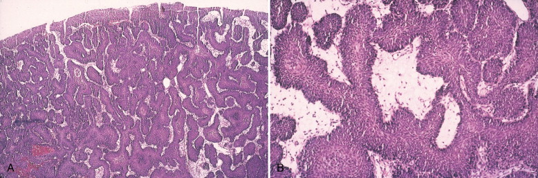 exophytic papilloma bladder