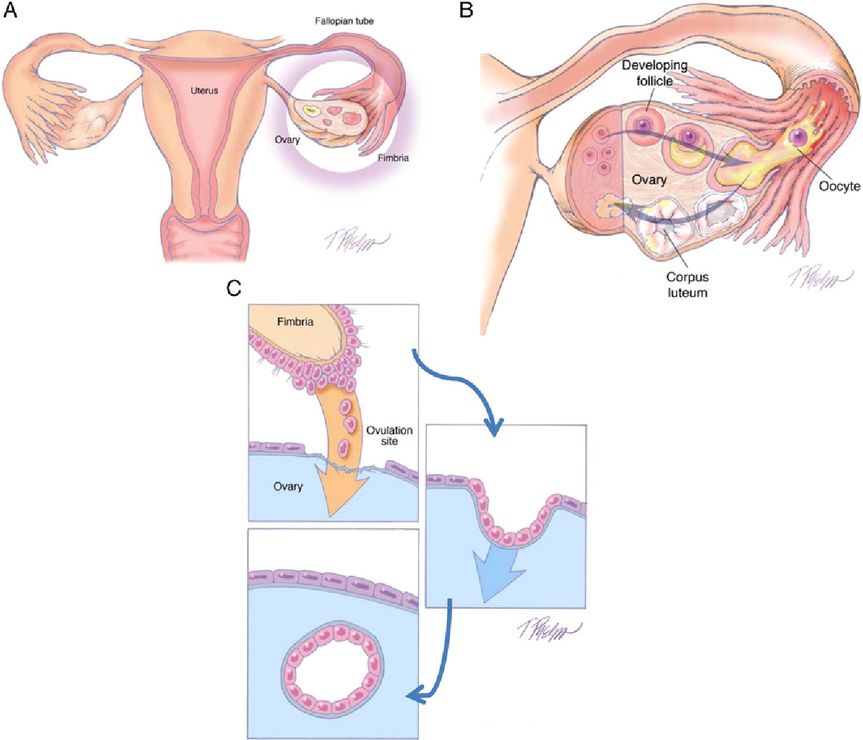 ovarian cancer epithelial origin)