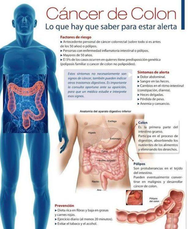 sintomas del cancer de colon en hombres)