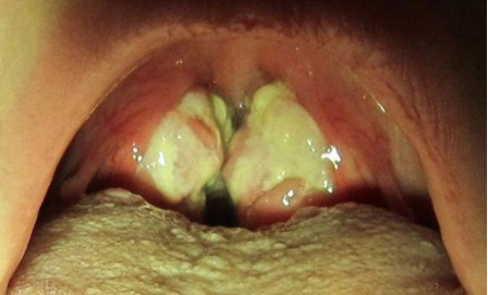 hpv virus caused by kissing)
