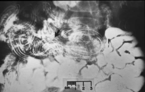 paraziti kod kokosaka cancer de renal que es