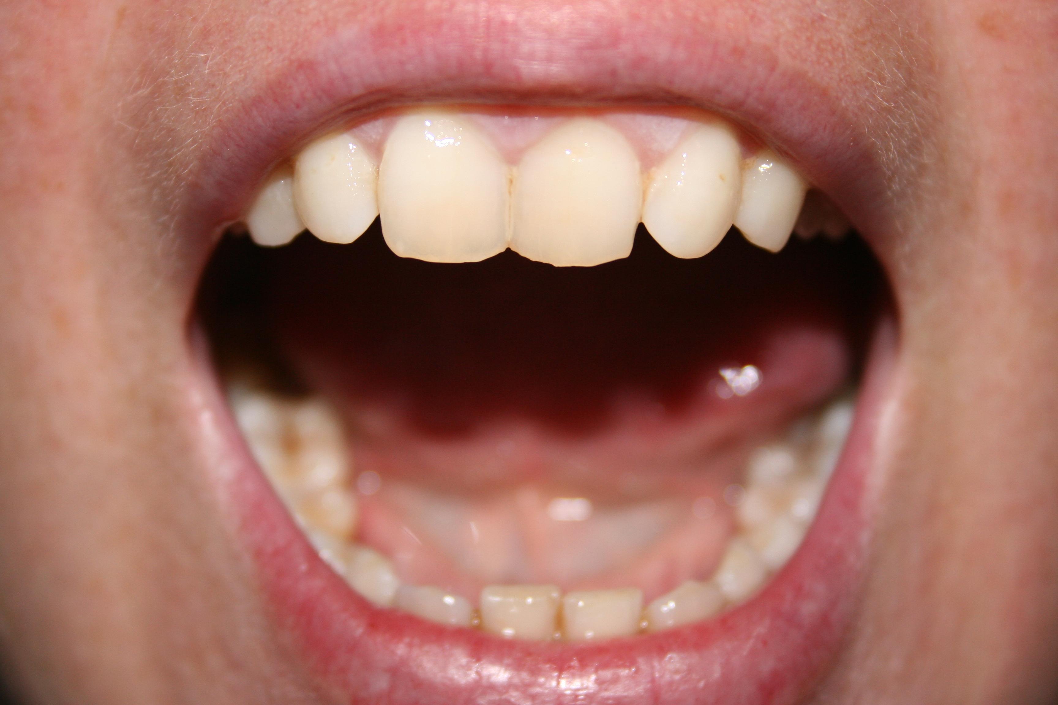 virus papiloma humano se transmite por saliva