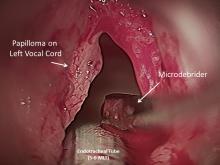 treatment in laryngeal papillomatosis
