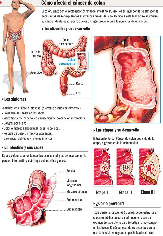 cancer colon gases)