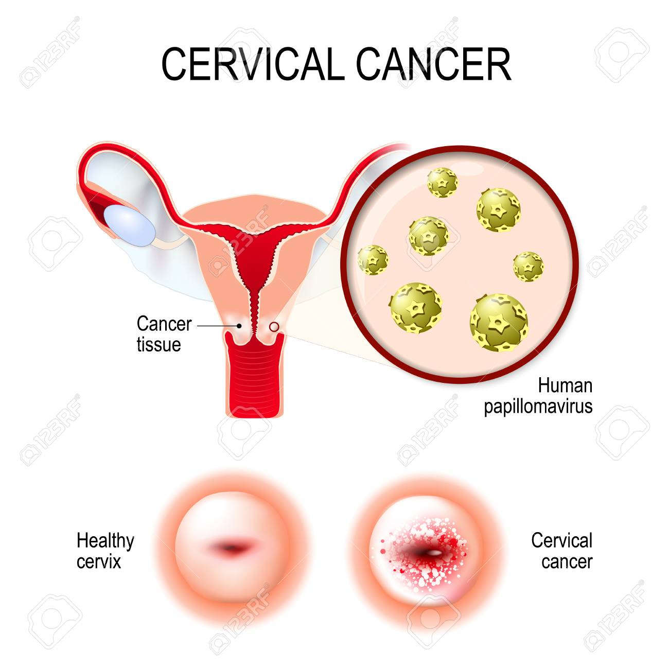 hpv in carcinoma cervix)