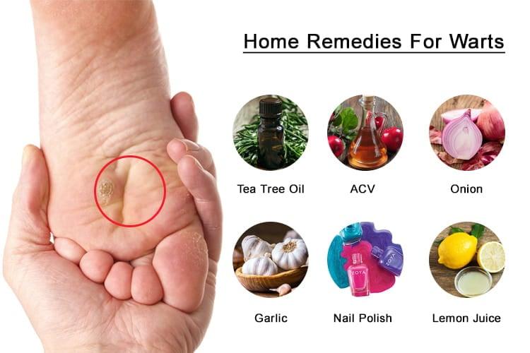 plantar wart home remedy nail polish
