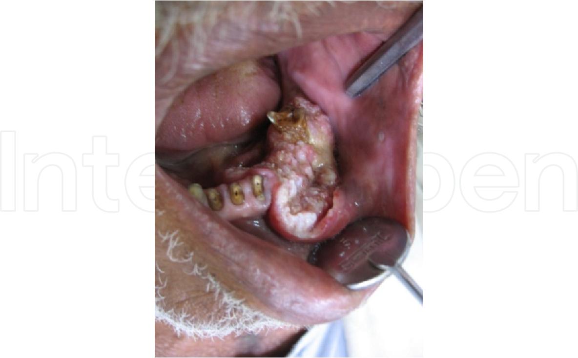 metastatic cancer in neck)
