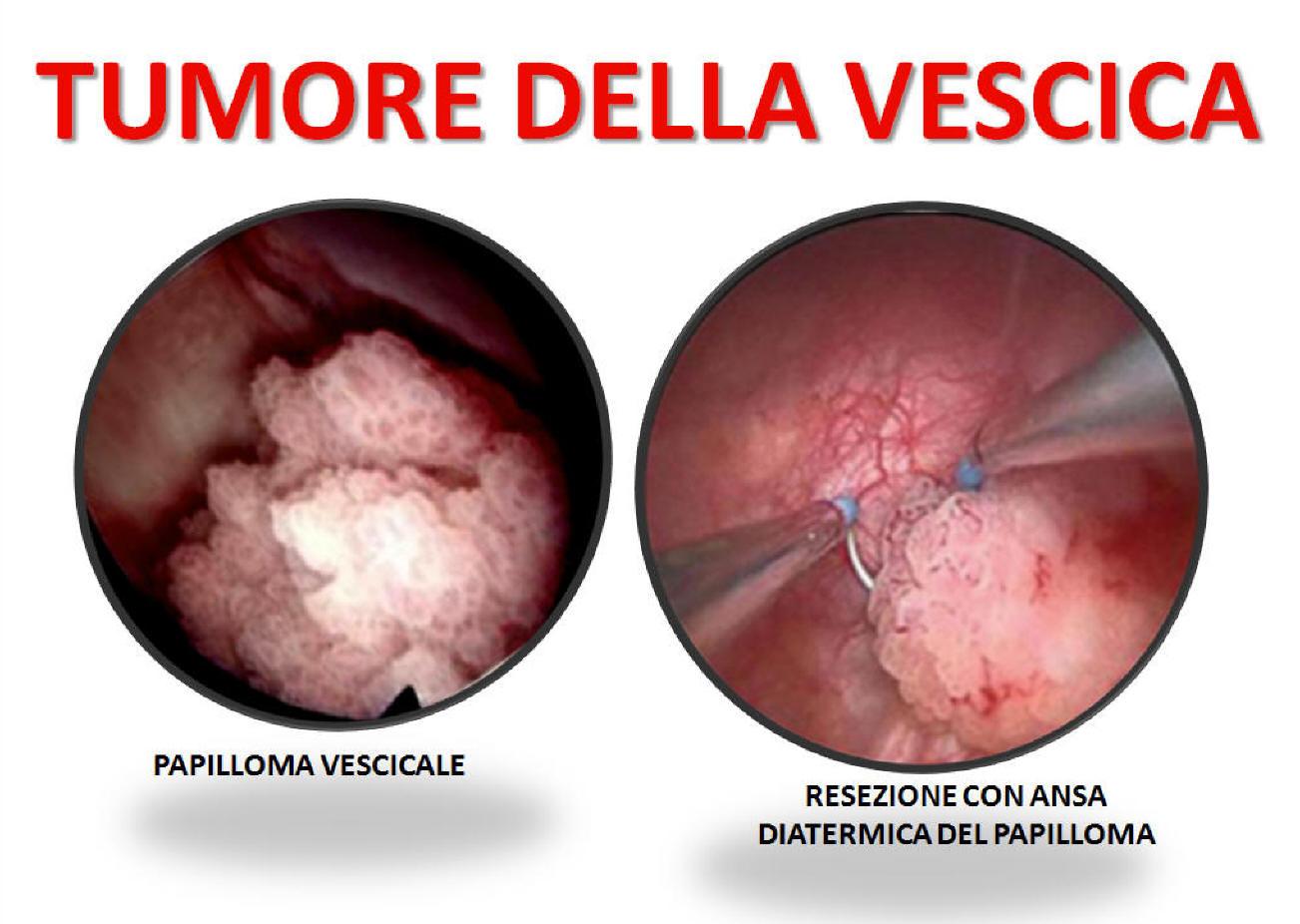 papilloma tumore vescica)