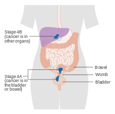 uterine cancer years after hysterectomy neuroendocrine cancer death