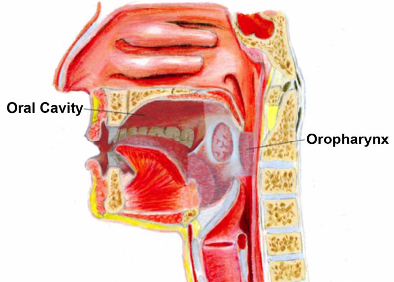 head and neck cancer linked to human papillomavirus)