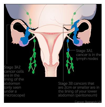 (PDF) Cancerul-ovariananexa | Gabriela Corhan - evenimente-corporate.ro