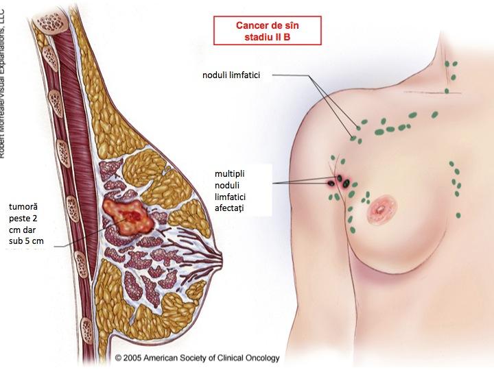 cancer de san stadiul 2 b)