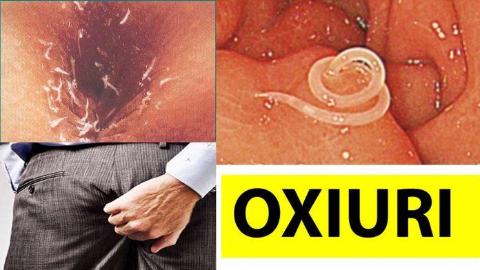 simptome la paraziti intestinali)
