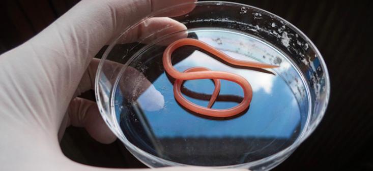 Recenzii parazit parazit ,pe fondul giardiozei, au apărut esofagita erozivă și urticarie