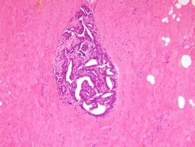 intraductal papilloma pathophysiology medscape)