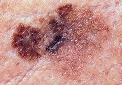cancer de piele bube)