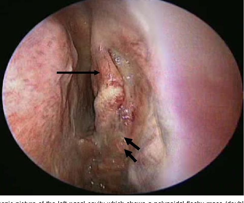 nasal papilloma removal