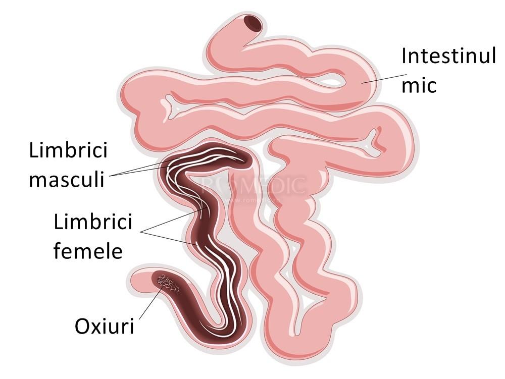 paraziti intestinali la bebe simptome