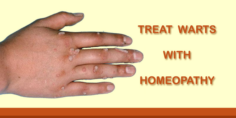 warts homeopathic cure