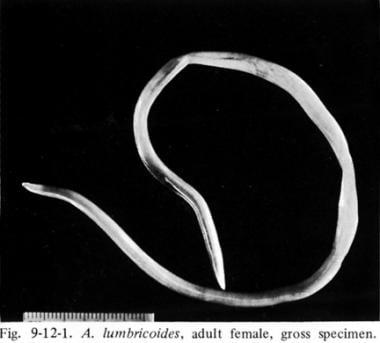 enterobiasis y ascariasis)