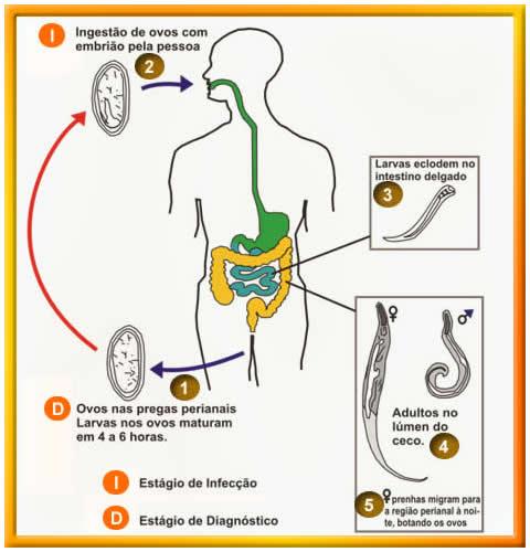 parasitos en los ninos oxiuros)