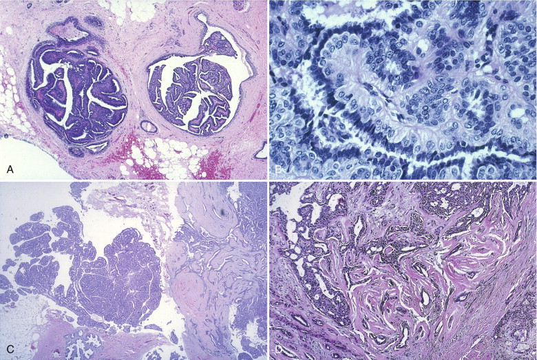 intraductal papilloma recurrence)