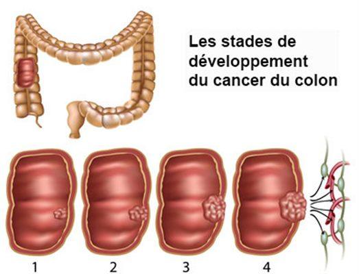 cancer colon vitesse sedimentation)