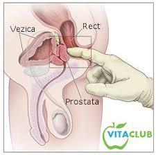 cancerul de prostata simptome si tratament)
