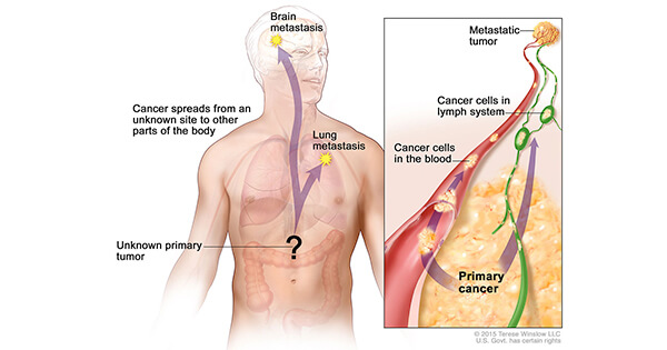 metastatic cancer carcinoma)