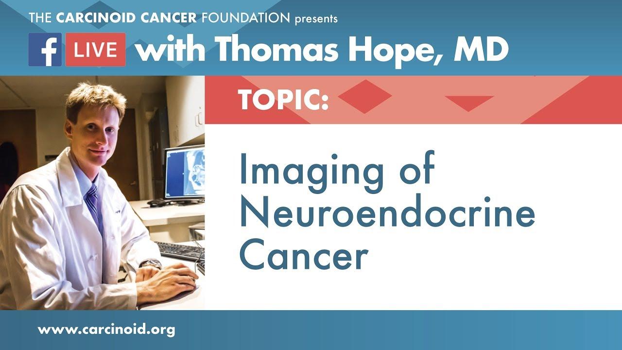 neuroendocrine cancer foundation)