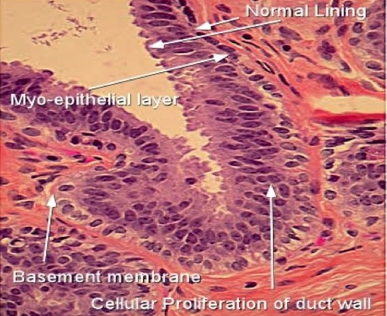 intraductal papilloma hyperplasia)