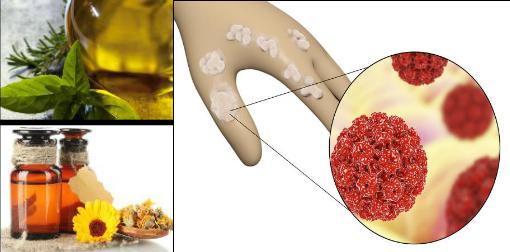papilloma virus home remedy)