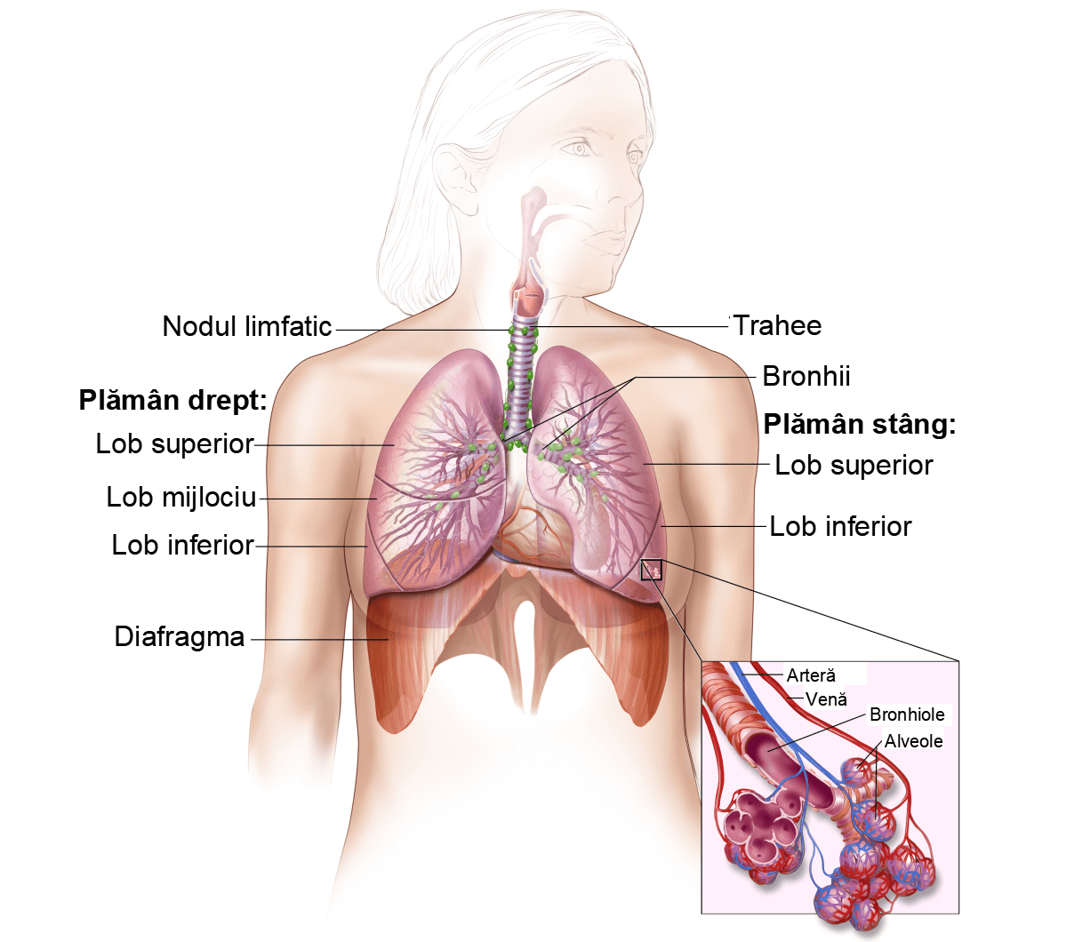 cancer pulmonar trahee