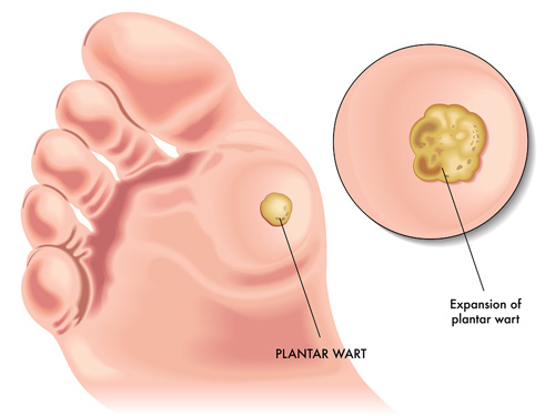 hpv related warts