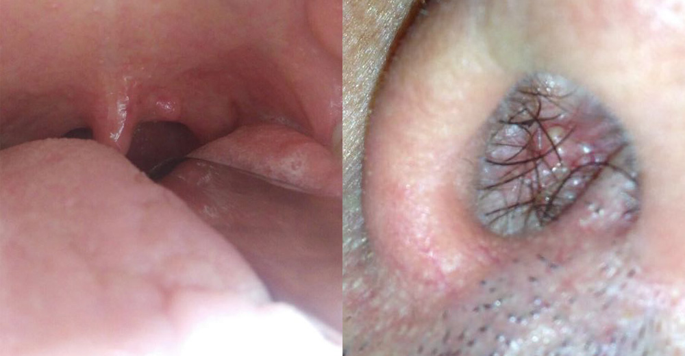 sintomi hpv in gola