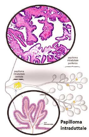 papilloma intraduttale terapia