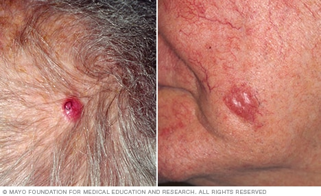 sarcoma cancer de piel)