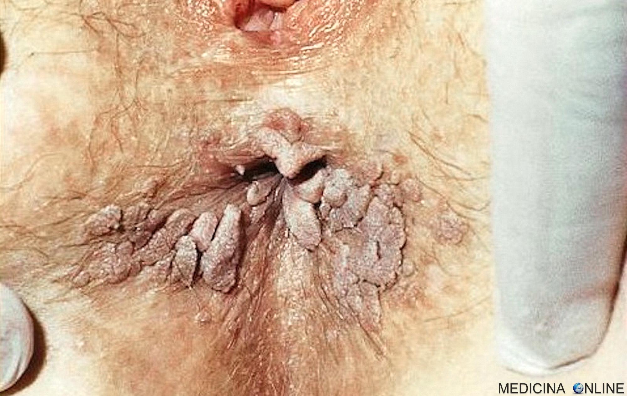 papilloma virus contagio incubazione