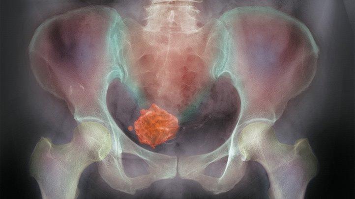 [Cancer of the cervical stump].