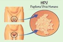 papillomavirus contagio