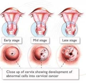 throat cancer cause by hpv)