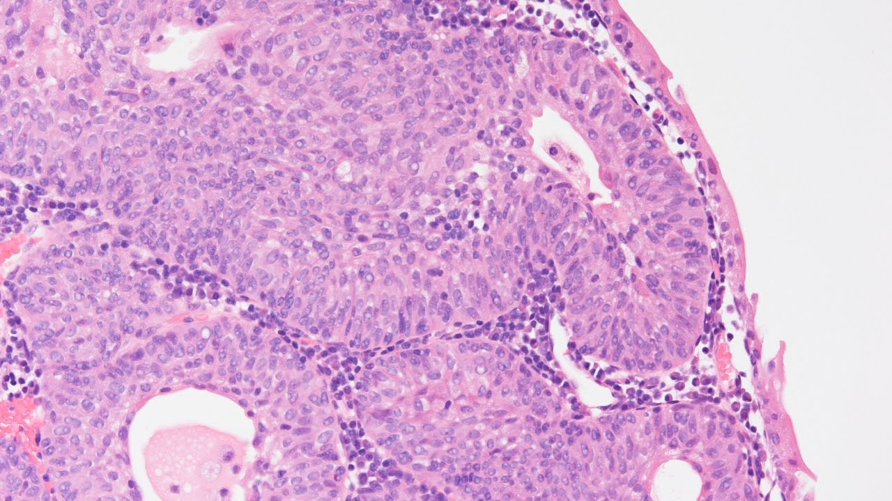 inverted papilloma transitional cell carcinoma)